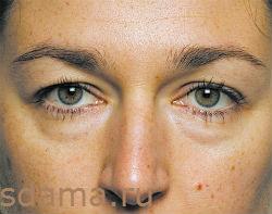 мешки и отеки вокруг глаз