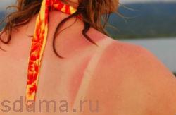 Средство от солнечных ожогов