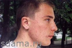 Как удалить угри на лице