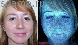 Тестирование кожи лица