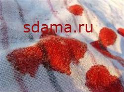 Как вывести пятна от крови