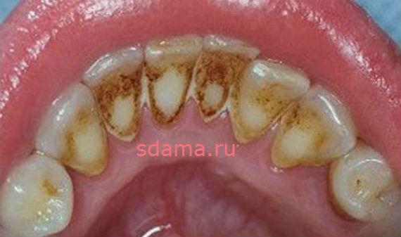удалить зубной камень