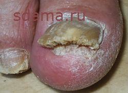 Лечение грибка ног народными средствами