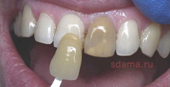 отбелить зубы