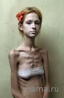 анорексия смотреть