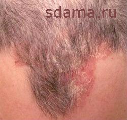 Cеборея кожи